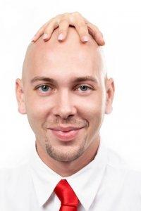 Business Mann mit Hand auf dem Kopf